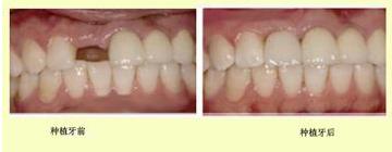 种植牙手术的价格到底需要多少