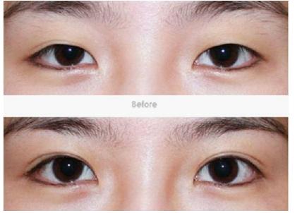 双眼皮术后效果图-做了双眼皮要肿几天