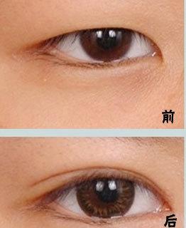韩式双眼皮手术的全部过程 美莱国庆割双眼皮优惠