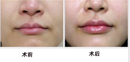 注射玻尿酸丰唇的注射过程时间非常短