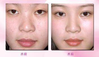 注射隆鼻可以使用玻尿酸注射,自体脂肪注射以及微晶瓷和胶原蛋白注射;目前来