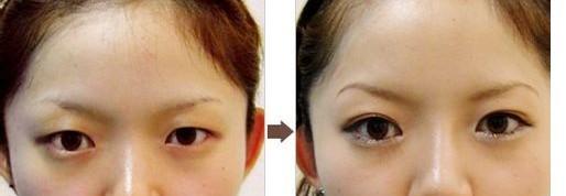 韩式双眼皮的恢复过程是多久