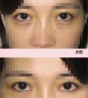 深圳女性黑眼圈太重怎么办-把美丽带回家_深圳