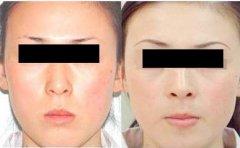 皮肤肤色不均的原因