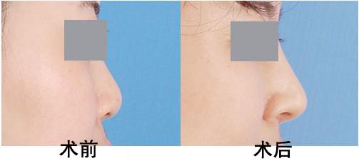 鼻子不通的原理_注射隆鼻:注射隆鼻的原理与手术隆鼻的原理差不多,都是通过往鼻子的皮肤组织里填充物质而达到隆鼻效果,但注射隆鼻不需要切开鼻子的皮