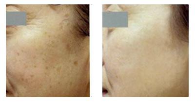 冷冻治疗老年斑的原理_老年斑治疗前后对比图