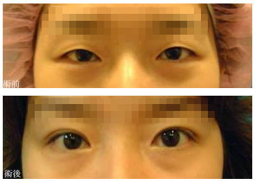 深圳整形 做双眼皮哪种方法比较好