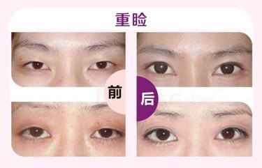 深圳整形 怎样让单眼皮变双眼皮