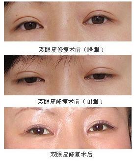 深圳双眼皮失败修复哪里好