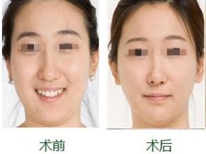 面部吸脂的效果如何