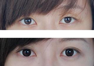 为什么双眼皮会变成三眼皮