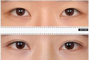 女性做割双眼皮手术要多少钱