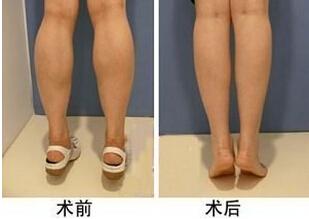 botox瘦腿针的价格是多少