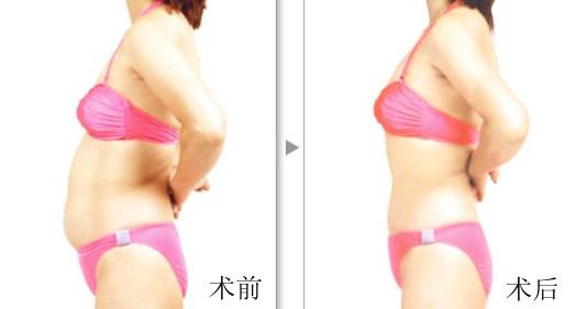 如何快速减肥
