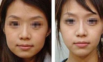 面部吸脂瘦脸塑形大概多少钱