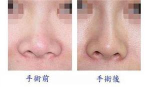 鼻綜合整形感染癥狀