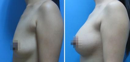 胸部整形前后对比图-深圳胸部整形会有后遗症吗图片