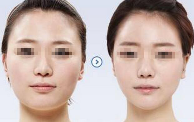 哪里做面部吸脂减肥比较好