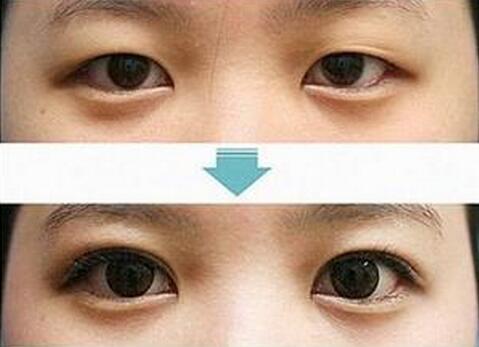 做双眼皮整形恢复要多久