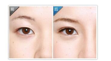 韩式无痕双眼皮整形哪里好