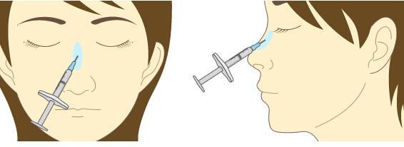 注射隆鼻过程