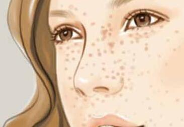 如何有效去除脸上的斑