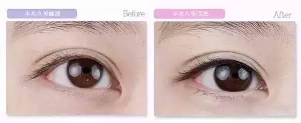 """是通过专门仪器在表皮做出微小的创口,将纯天然色素注入到皮肤表皮层进行美妆的技术。其色彩自然,会随着角质脱落和新陈代谢的进行自然消失。 半永久美瞳线,再见""""熊猫眼""""  眼是神韵的传达,是魅力的点缀,眼睛是心灵的窗户。描个眼线就能达到将眼睛放大的作用,但是天天都描眼线,你有没有问过自己累不累?"""