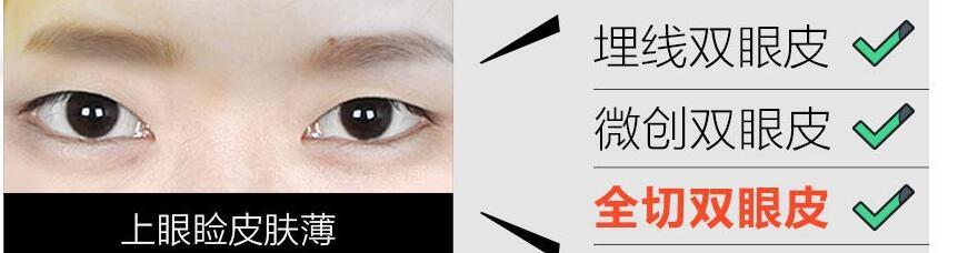 双眼皮整形哪种方法好不好