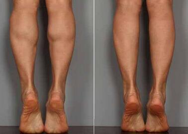 打瘦腿针对比照片