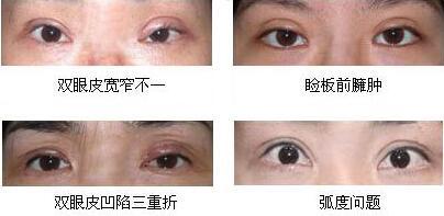 割双眼皮失败症状
