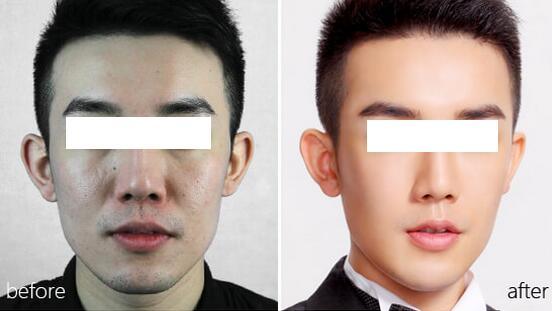 瘦脸针瘦脸效果