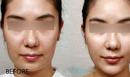 面部线雕提拉祛皱有哪些好处图片