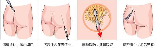 做吸脂瘦臀的大致过程是怎么样的
