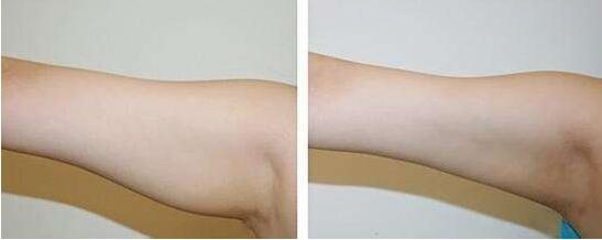 手臂抽脂大概多久才能恢复自然