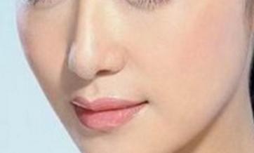 垫鼻子应用的假体有保质期吗