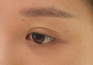 多眼皮怎么变成双眼皮