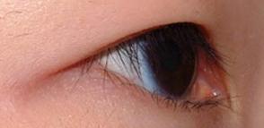 开眼角术后是否会留下疤痕