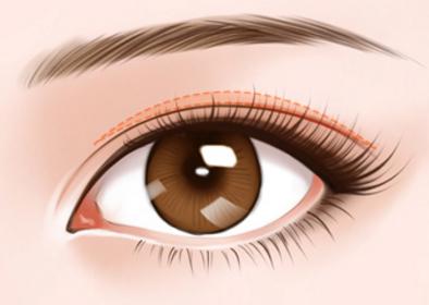 通过手术来去除眼袋会有疤痕吗