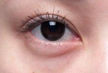 有什么方法可以将眼袋去除