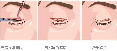 做双眼皮埋线多久能恢复